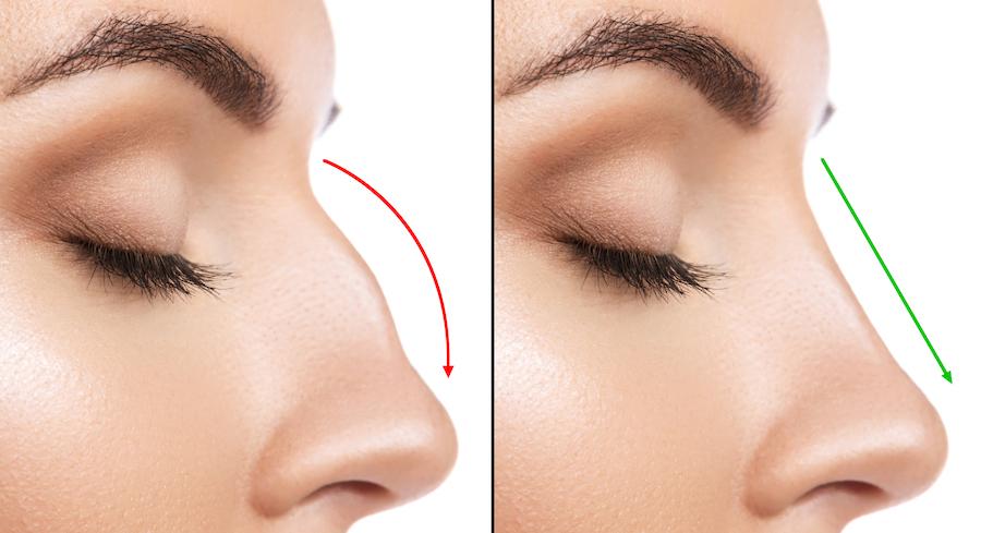 O nome da clínica Ícone vem da sigla (Instituto Cirúrgico Otorrinolaringológico – Nosologia e Estética)