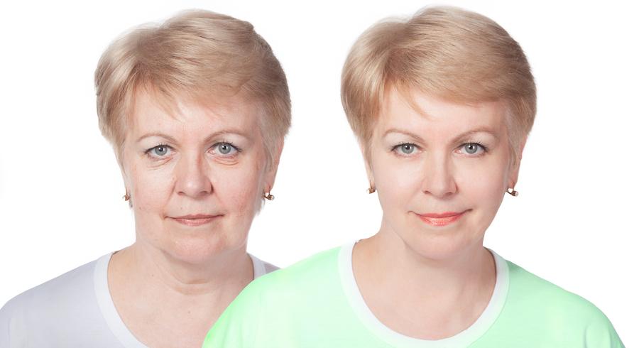 Lifting facial (Cirurgia Plástica do Rosto – do Inglês: To lift – elevar)